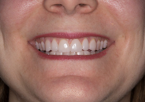 Teeth of 20 year veneer followup of a woman at Gary R. Templeman, DDS.